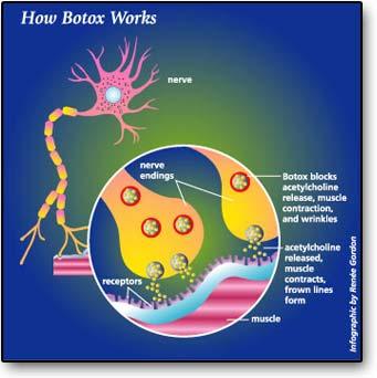 Info-botox2